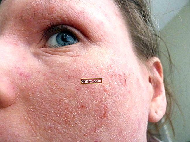 Cos'è l'eczema? Come passa l'eczema?
