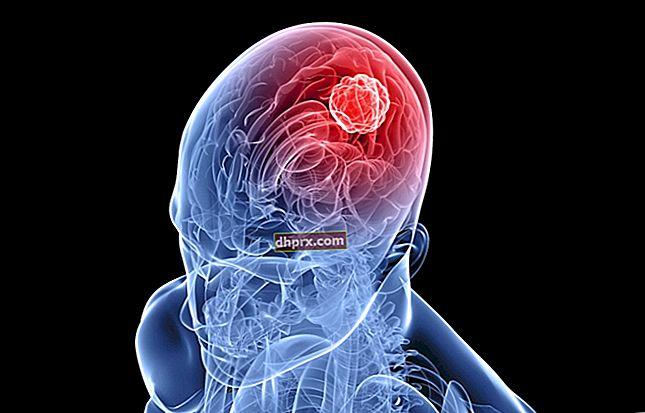 Sintomi e trattamento del tumore cerebrale